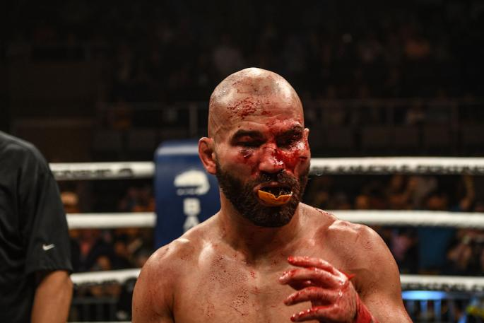artem-lobov-vs-jason-knight32