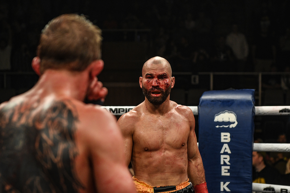 artem-lobov-vs-jason-knight23